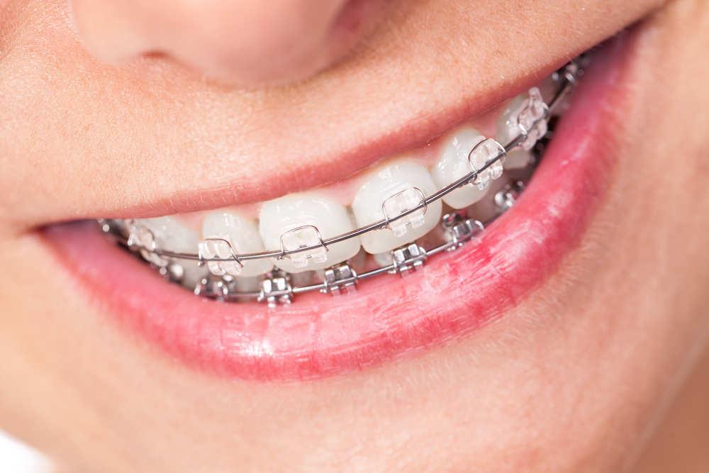 Famosos con ortodoncia