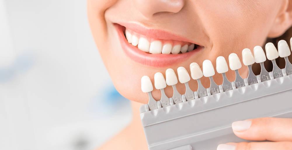 ¿Cuál es el mejor implante dental?